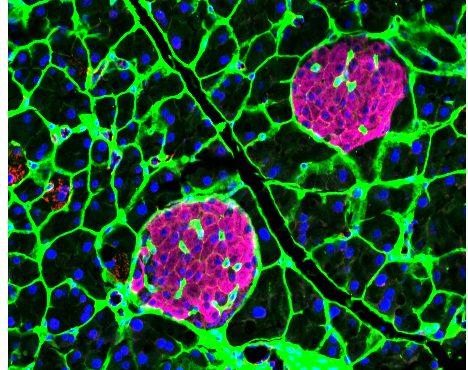 Islet cells contain specific ion channel cohorts.